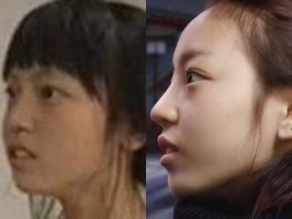 KARAクハラの鼻整形前後画像