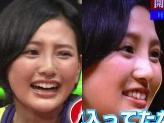 兒玉遥の2014年画像は鼻を整形か