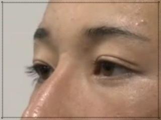 吉田輝星のまつ毛が長い横顔画像