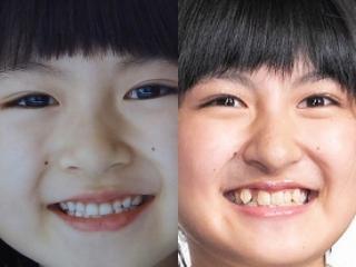 小林星蘭の歯並び画像