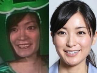 松本直美と大江麻理子の顔画像
