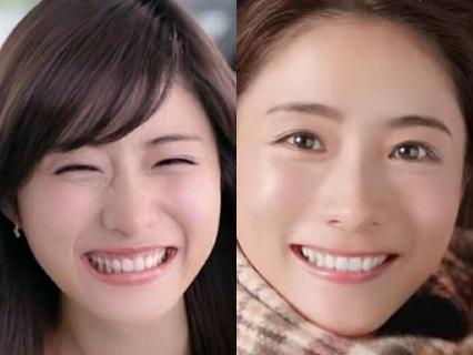 石原さとみの鼻の下人中画像,笑い方の変化