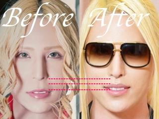 ローランド鼻の整形前後,人中短縮手術画像