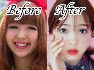 藤田ニコルの整形疑惑画像,デビュー時と現在を比較