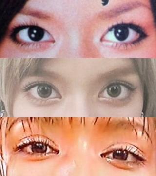 ローラの目画像,整形,目頭切開,二重