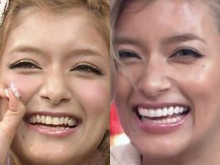 ローラの歯の画像,セラミック