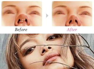 ローラ鼻尖縮小術画像