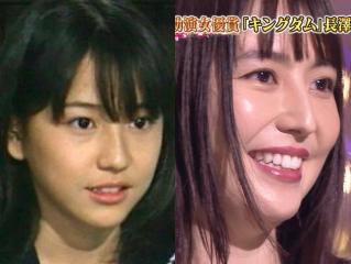 長澤まさみの鼻,若い頃と現在比較画像