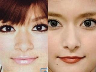 ローラの鼻整形画像